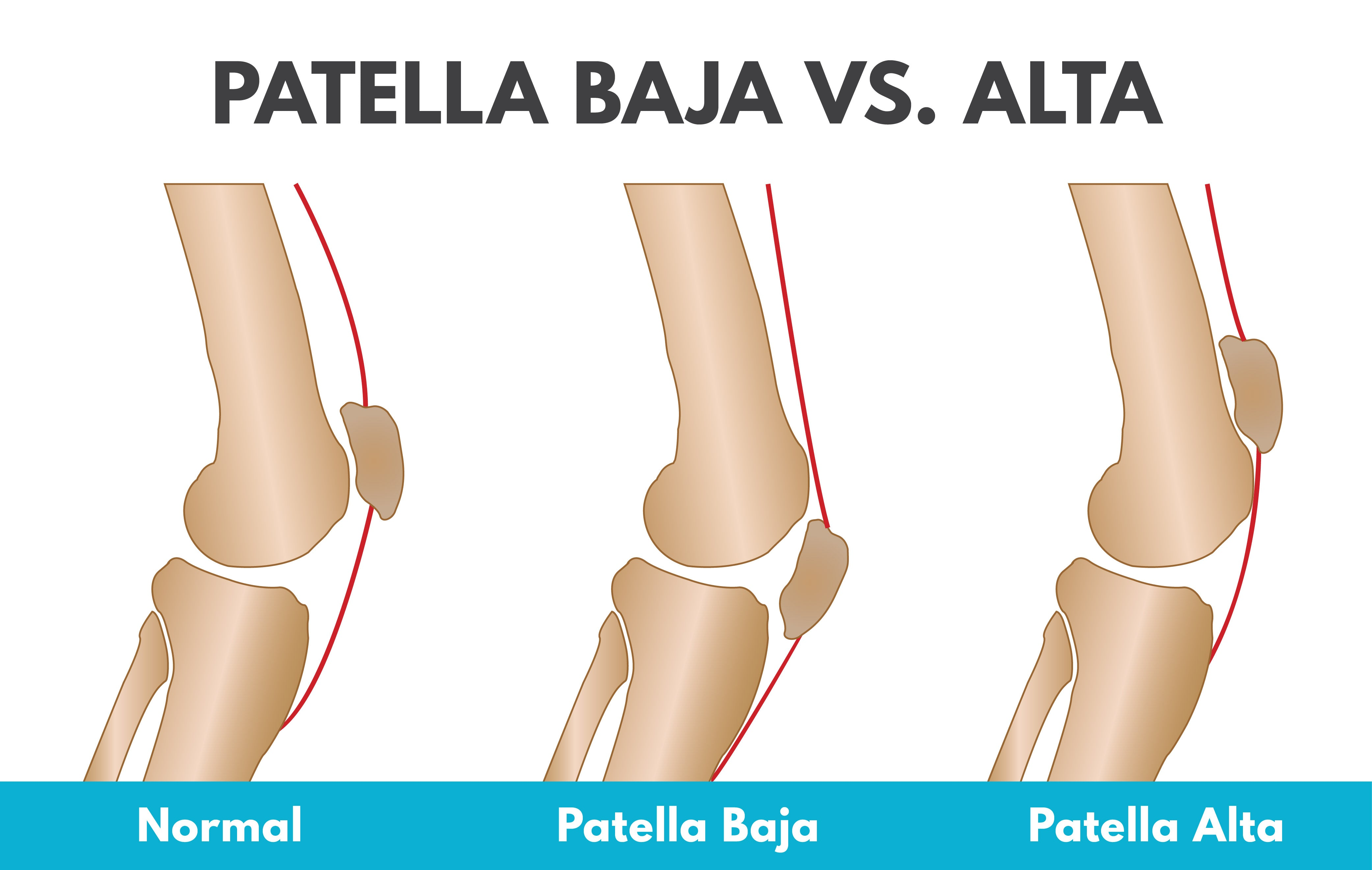 the difference between patella baja vs alta in your kneecap