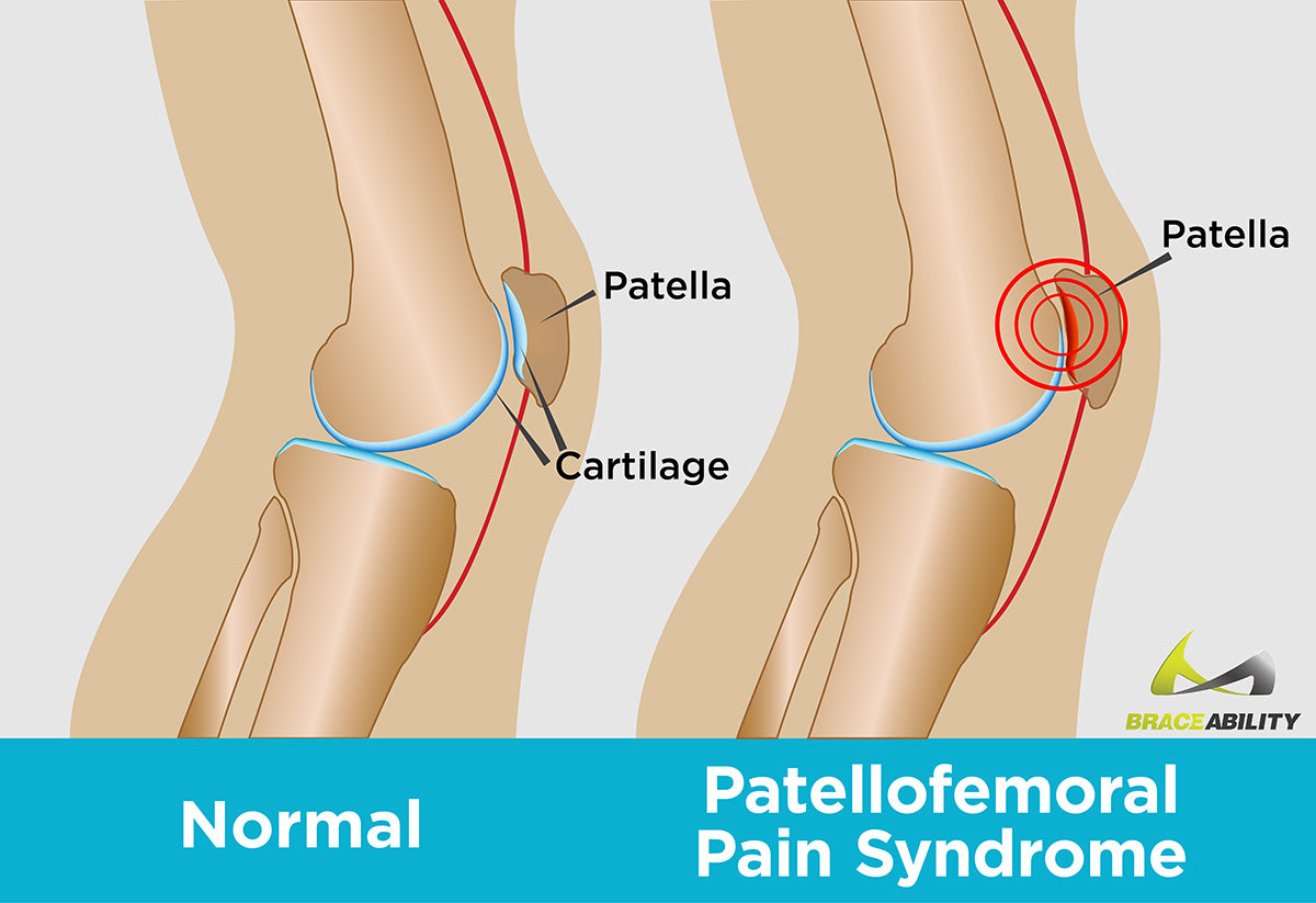 You can treat patellofemoral pain by using a knee treatment brace