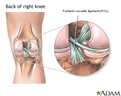where a pcl injuries happens in the ligaments behind the kneecap