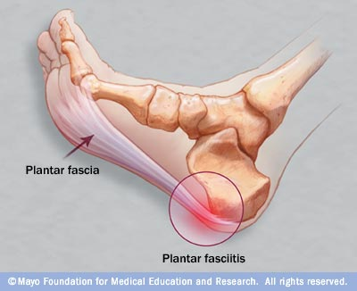 learn about foot anatomy, the plantar fascia, and causes of plantar fasciitis