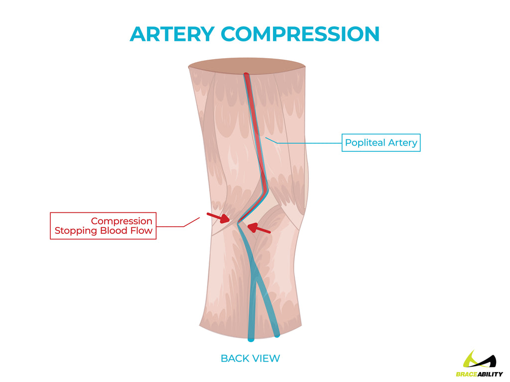 anatomy of compression on the popliteal artery causing back of knee pain