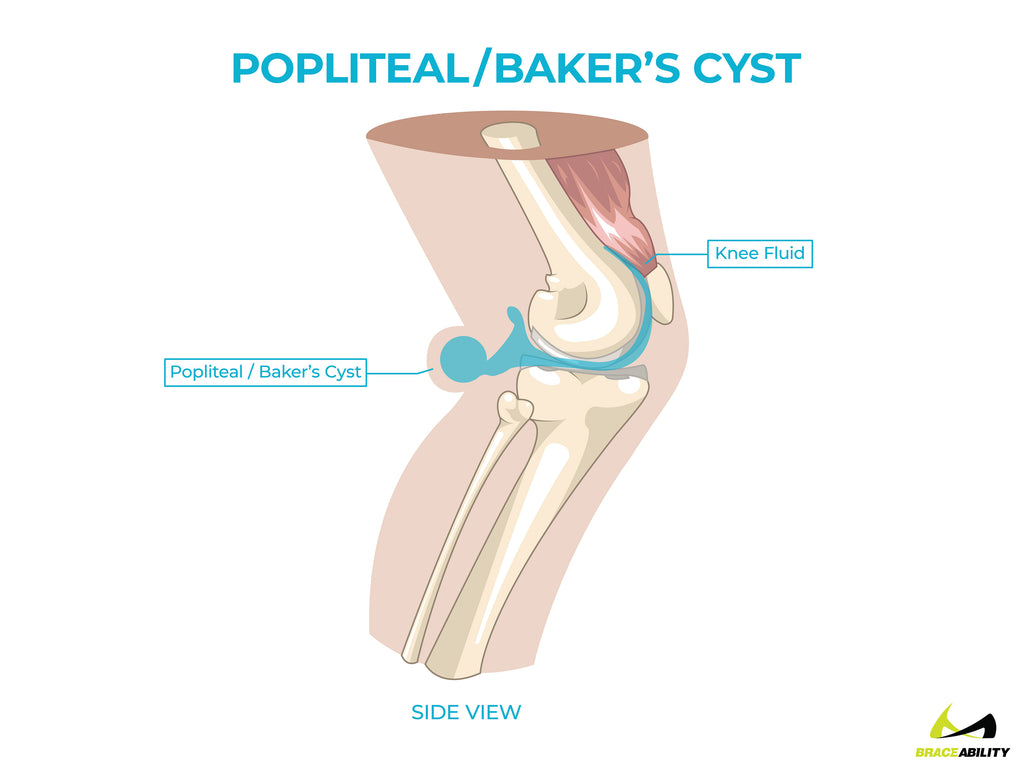 anatomy of a popliteal or baker's cyst in back of the knee