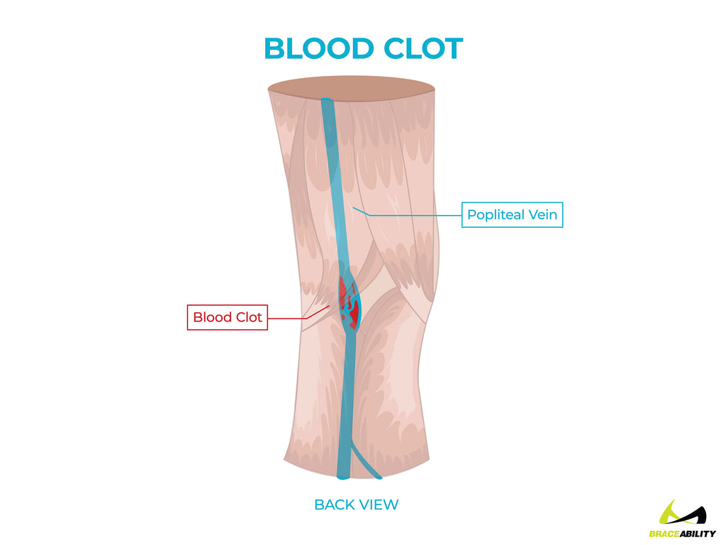 anatomy of a blood clot in the popliteal vein causing knee pain