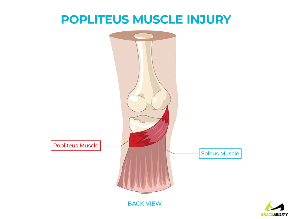 anatomy of a popliteus muscle injury and pain behind the knee
