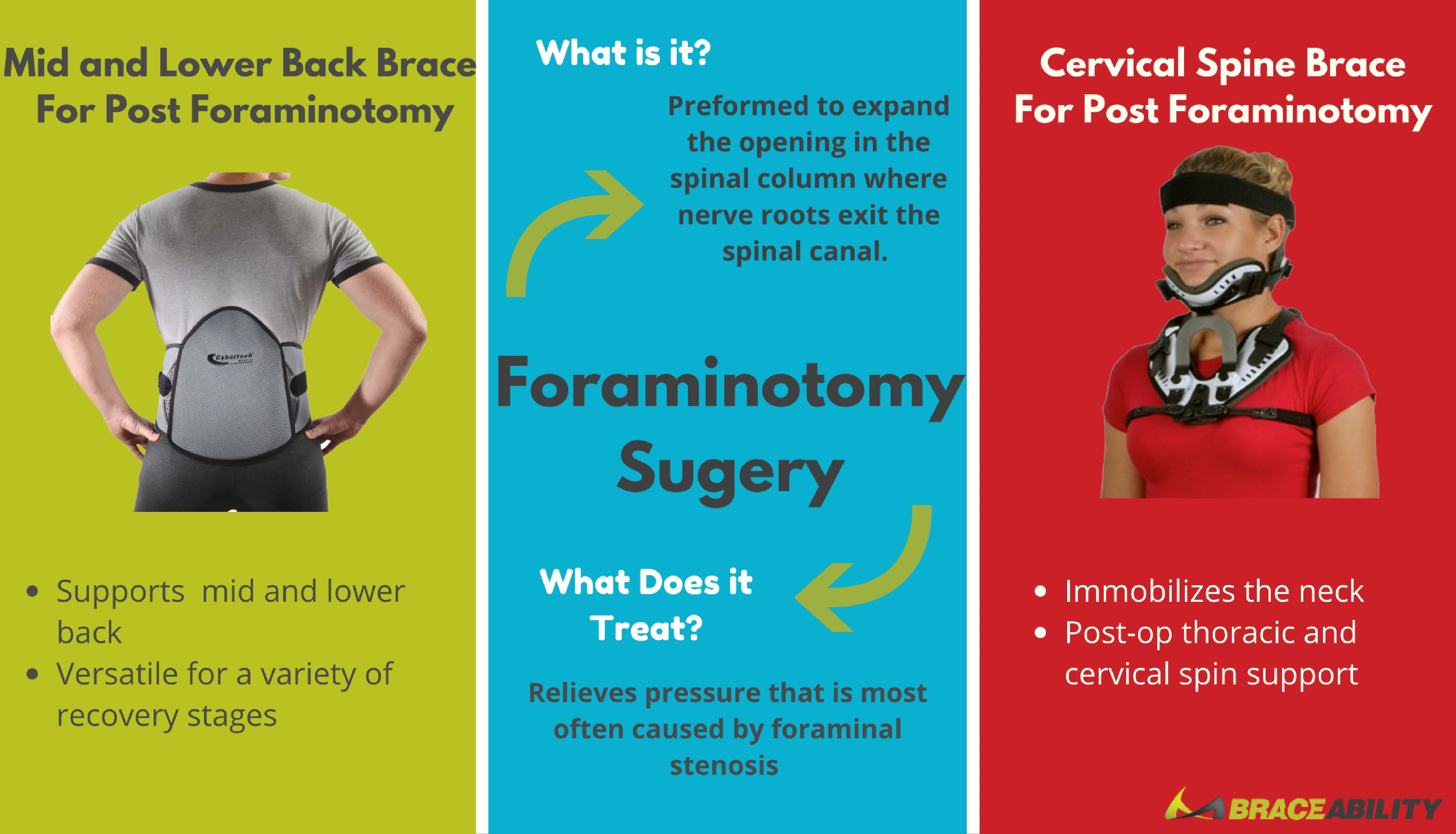 The best brace for post lumbar or cervical foraminotomy surgery