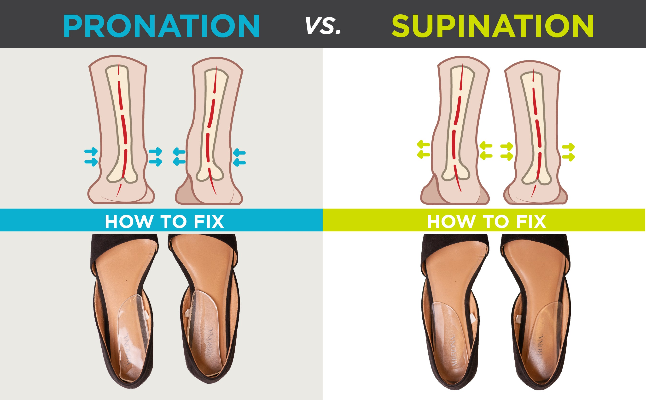 graphic showing the difference between supination and over pronation and how heel wedges can help fix them