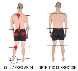 how a collapsed arch can cause running knee pain