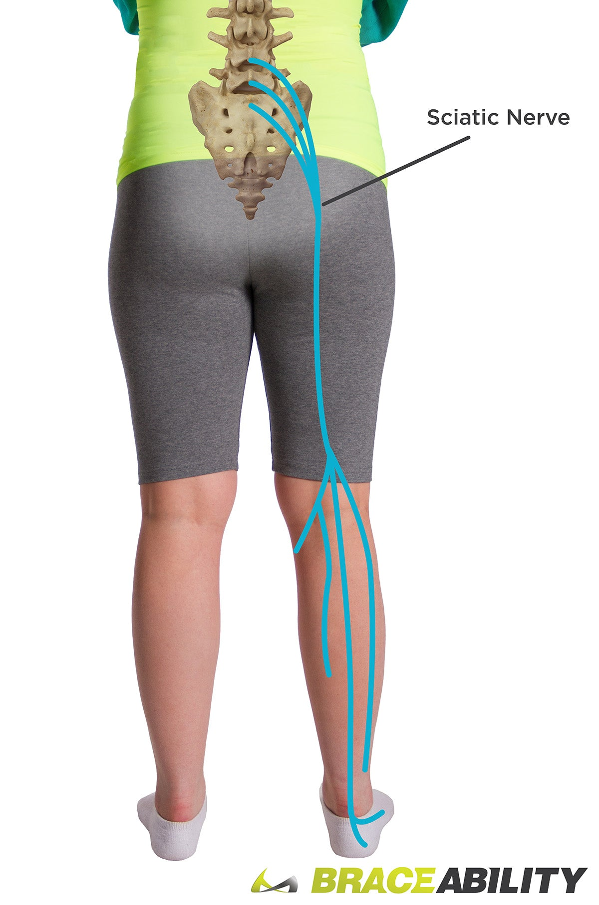 Where your sciatic nerve runs from your spine to your leg causing sciatica