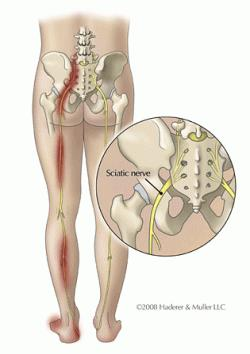 Sciatica from a pinched nerve or herniated disc in the lower back