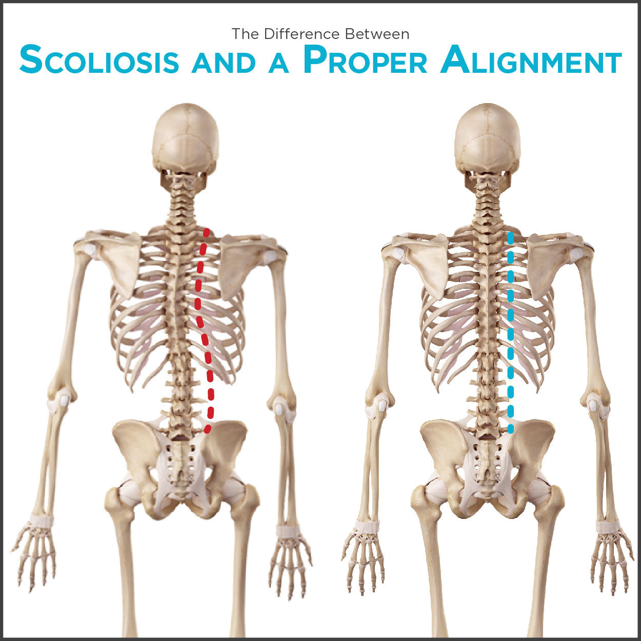comparison chart of what scoliosis looks like vs how a healthy spine looks