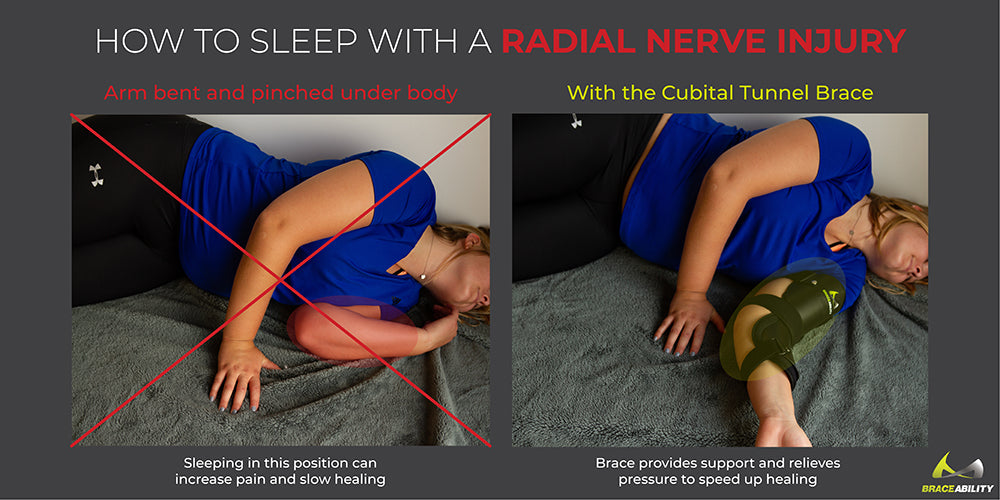 sleeping with a radial nerve injury to reduce pain and heal quickly