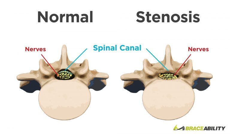 comparison between a vertebra with spinal stenosis and a healthy disc