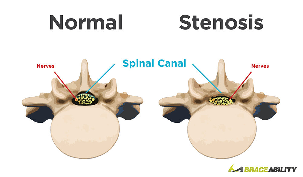 Braces for spinal stenosis to treat the narrowing of the space between the spinal canal