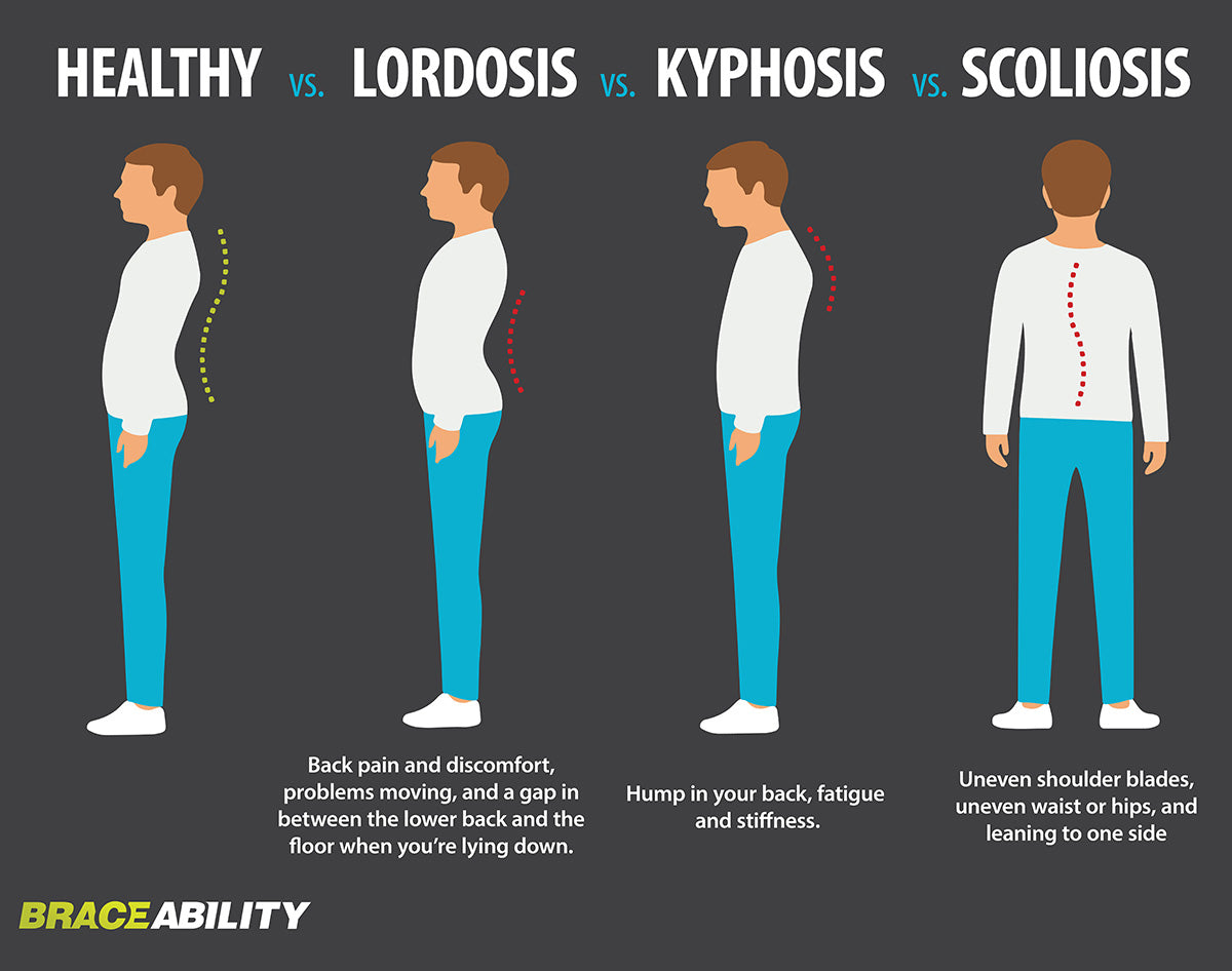 infographic on the difference between different spine curvature disorders - lordosis, kyphosis and scoliosis