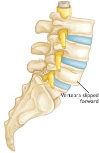 Spondylolisthesis from a slipped vertebra in your back