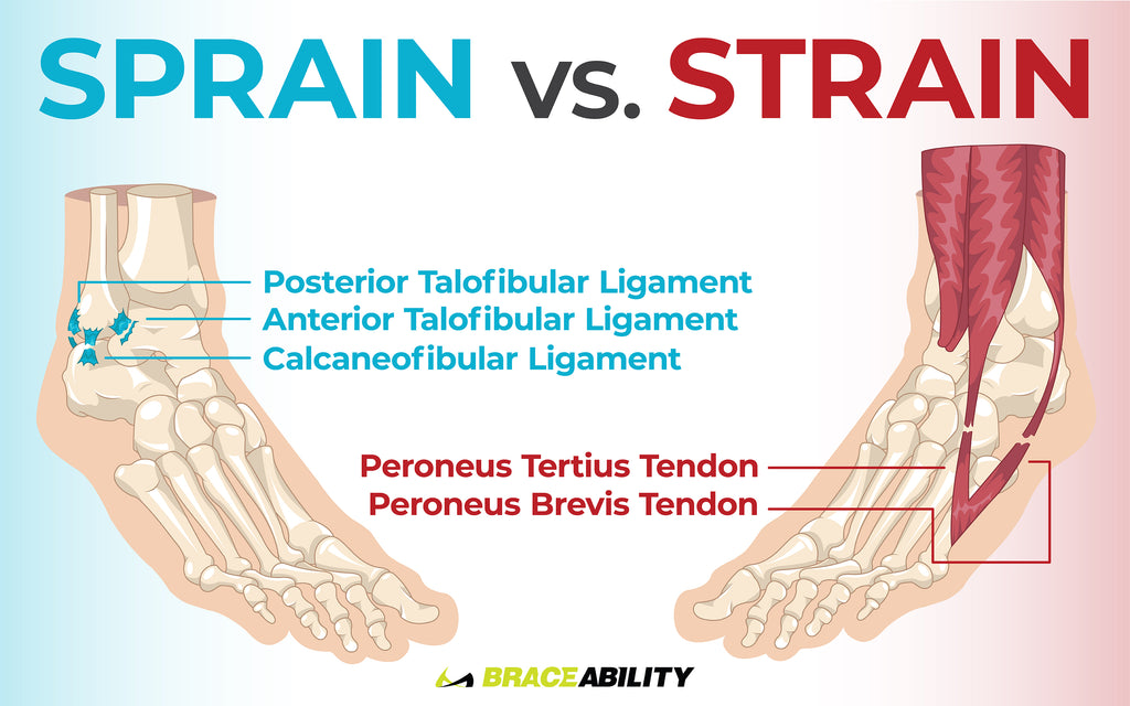 learn the difference between an ankle sprain and strain