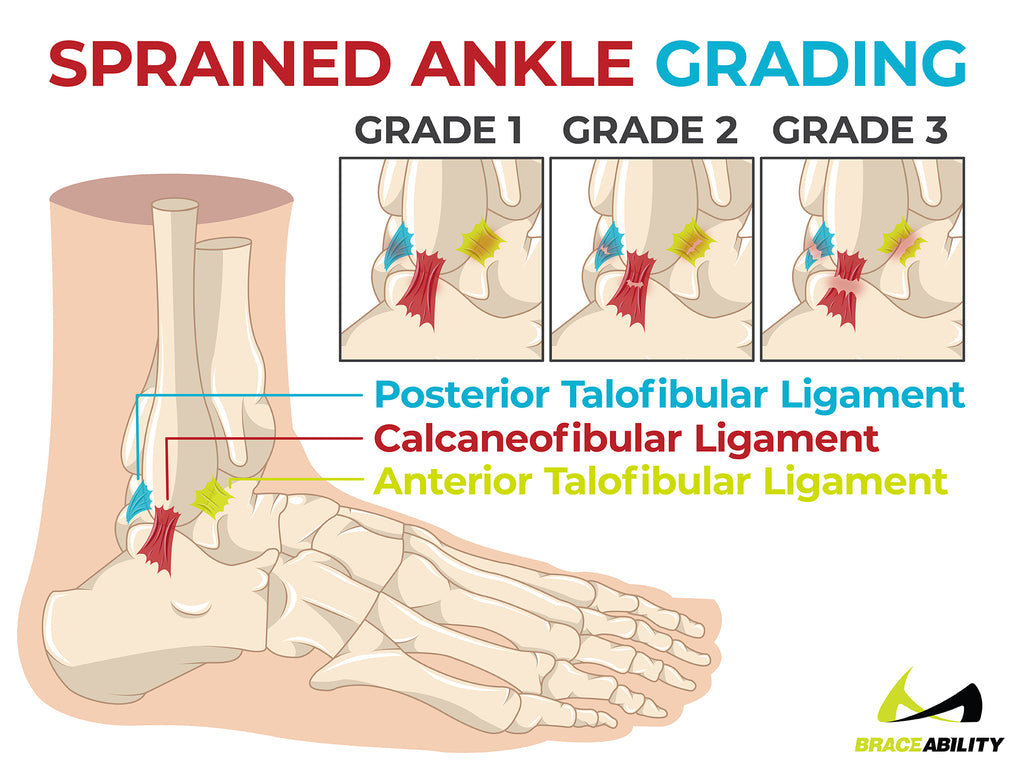sprained ankle grading and the three grades of injury