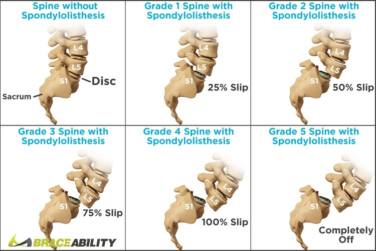 chart showing the different stages of spondylolisthesis and when you should have surgery