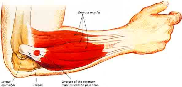 graphic of lateral epicondylitis pain causing tennis elbow in the muscles
