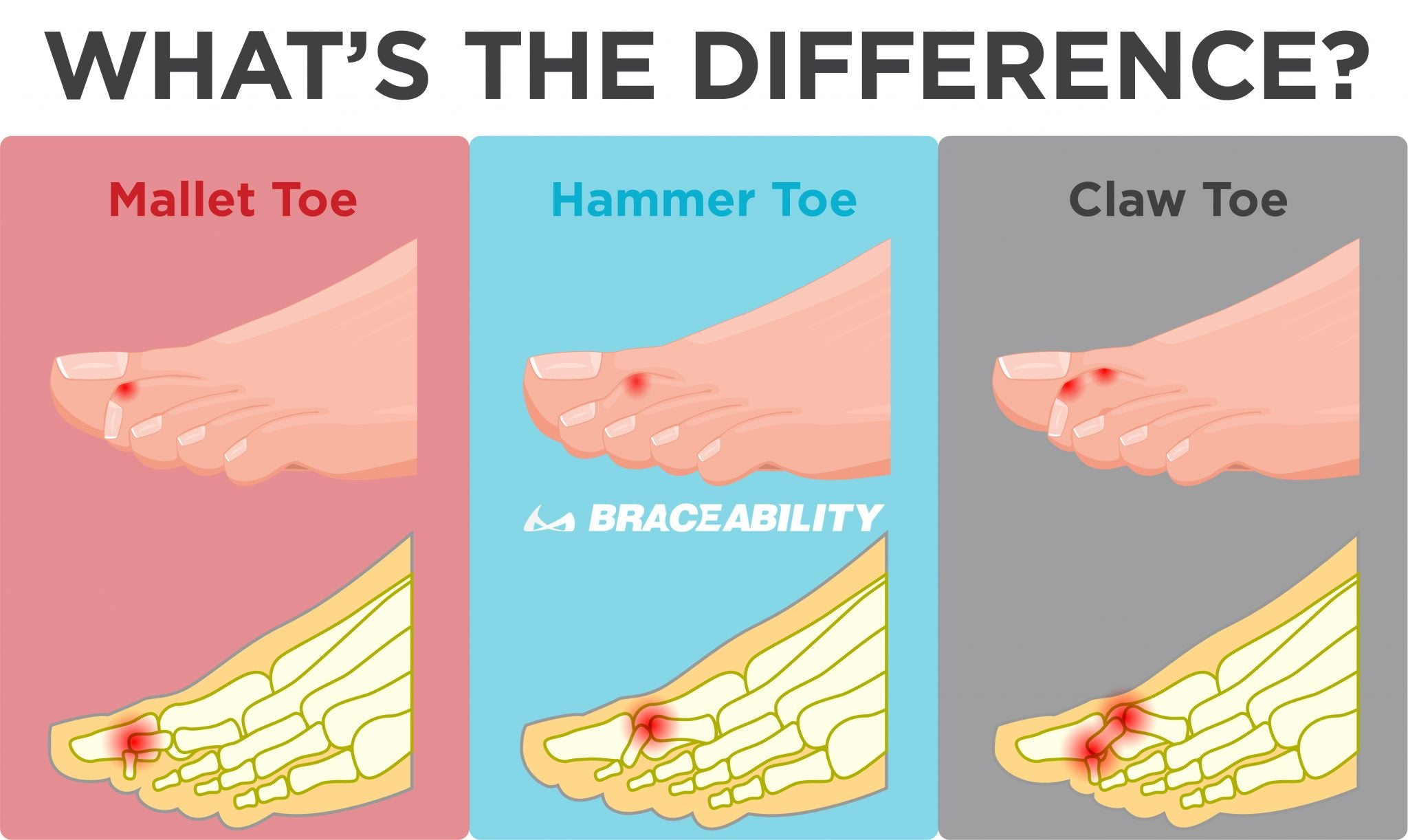 the difference between mallet toe, hammer toe and claw toe is what toe joint is injured