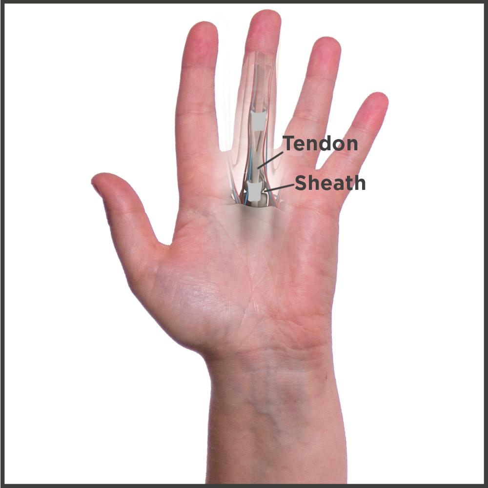 Trigger finger causes your tendon to get caught in a sheath and lock your finger