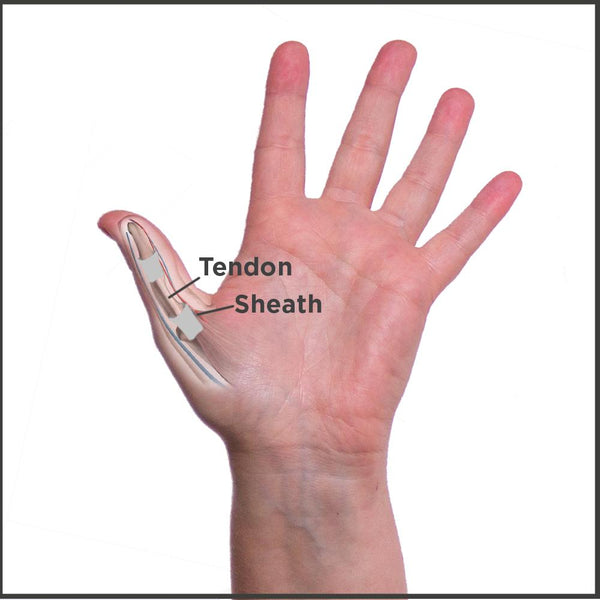 anatomy of trigger thumb condition caused by inflamed tendons