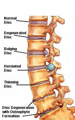 degenerative disc disease can lead to herniated disc or spinal stenosis