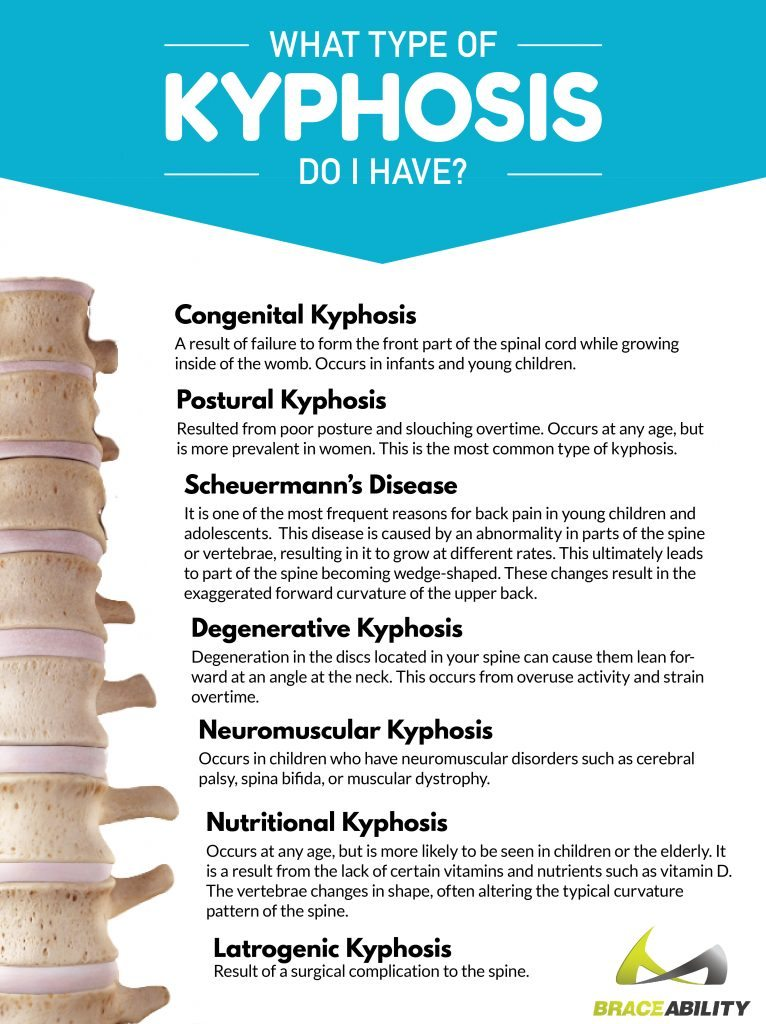 there are many kinds of kyphosis included in this chart including congenital, postural, degenerative and neuromuscular