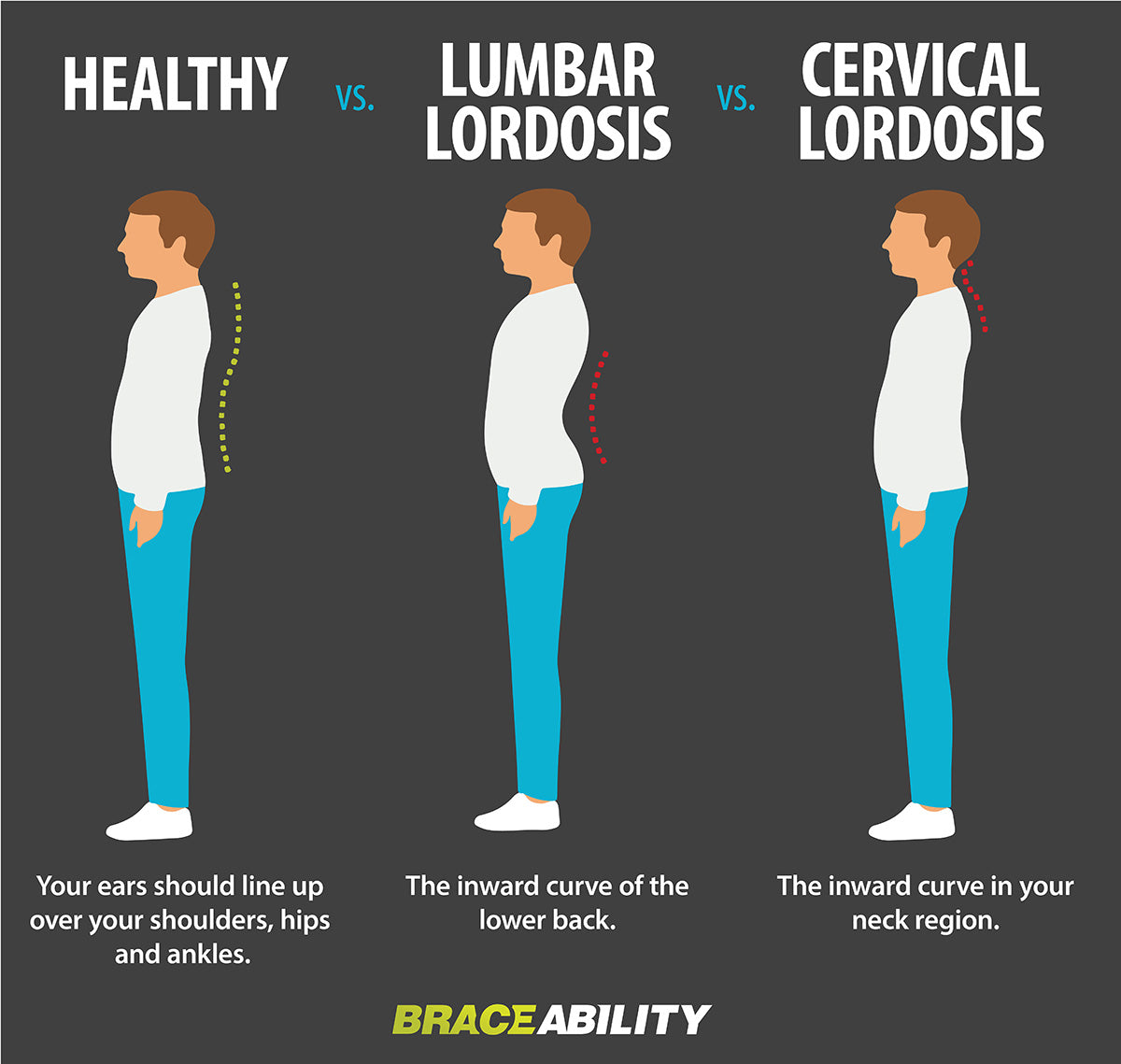 infographic describing the two different types of lordosis in your lumbar and cervical vertebrae