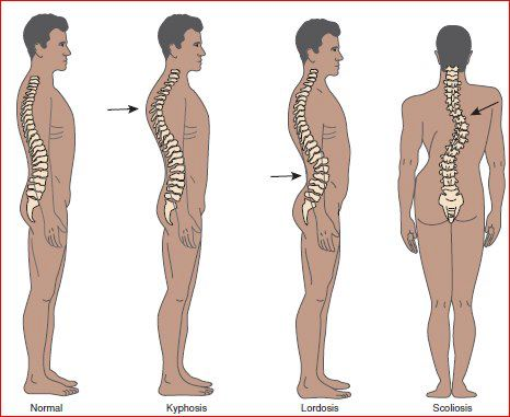 back pain from abnormal spine curves such as scoliosis, kyphosis, lordosis