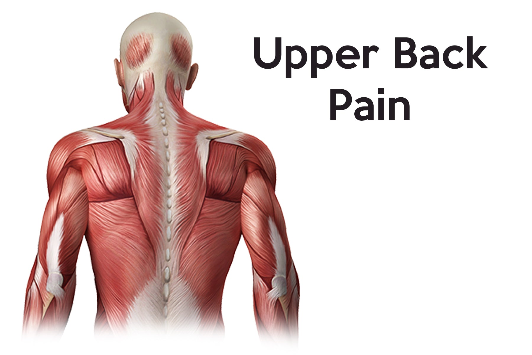 There are many treatment options for upper back pain, use this chart to determine the recovery process you need