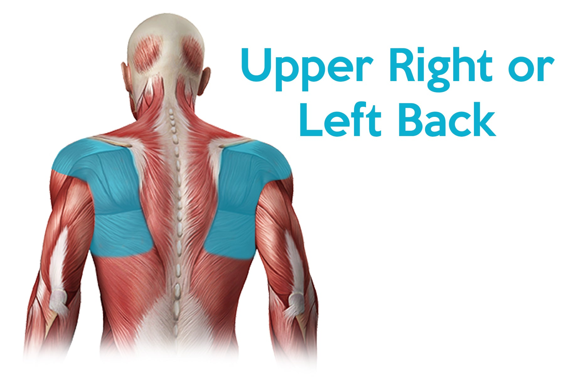 learn more about upper right and left back pain