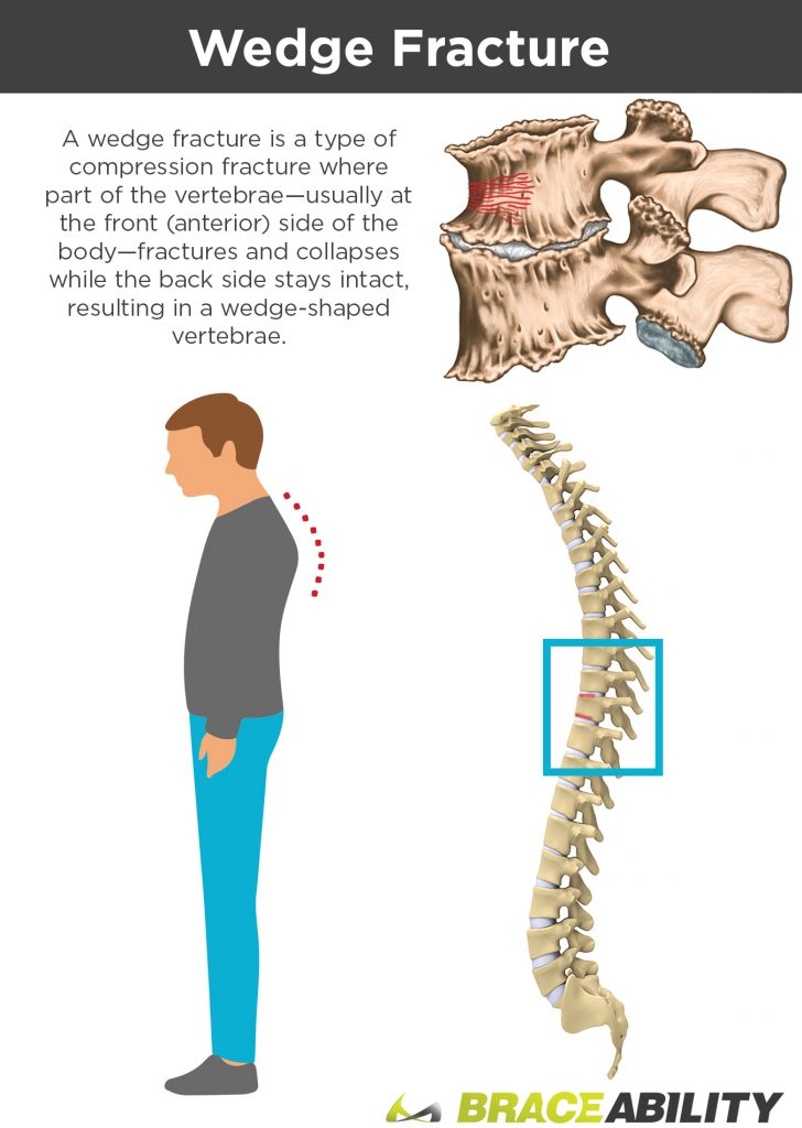 wedge fracture in spine compresses disc and curves your back