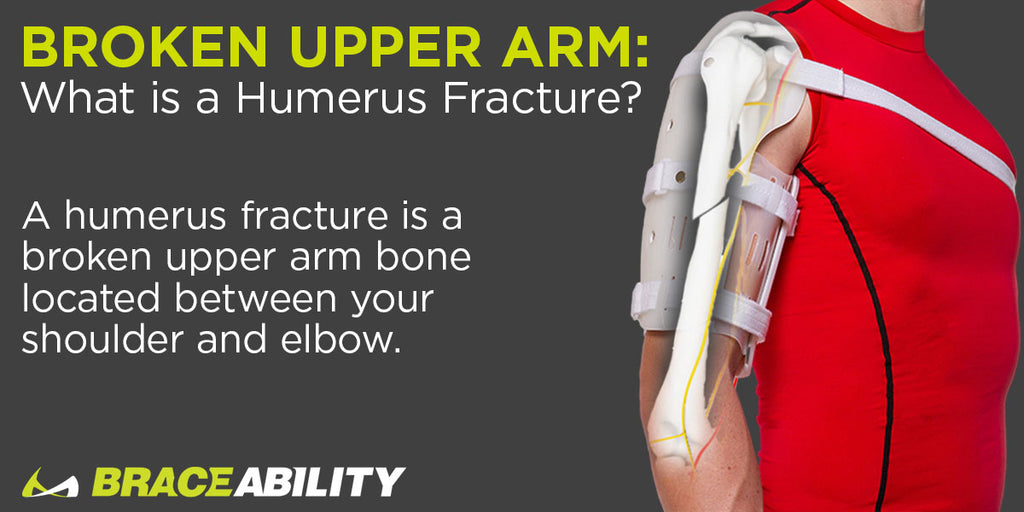 What is a humerus fracture?