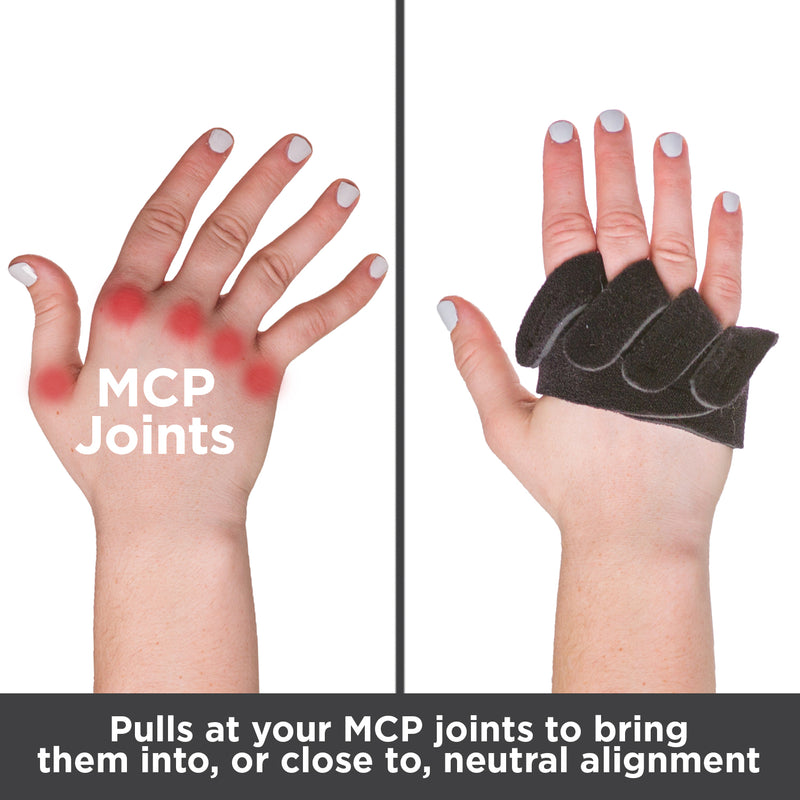 Pulls at your MCP joints to bring them into, or close to, neutral finger alignment