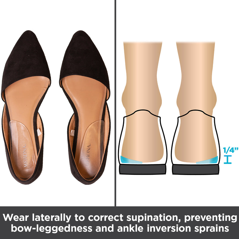 wear supination insoles laterally to correct bow leggedness and ankle inversions