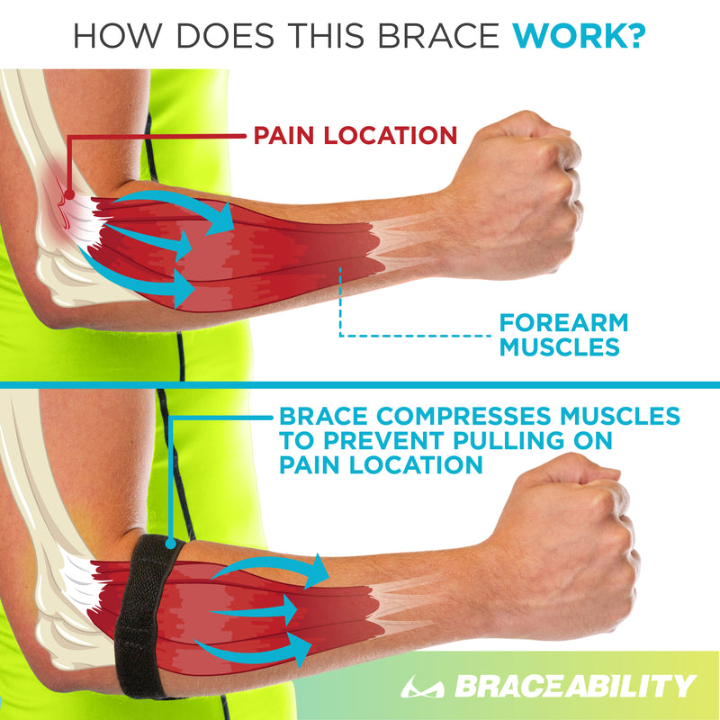 The braceability elbow tendonitis treatment brace applies pressure to the epicondyle to reduce epicondylitis pain