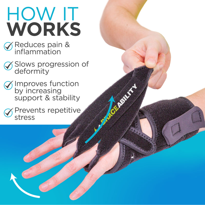The crooked fingers brace can help treat early rheumatoid arthritis in hands