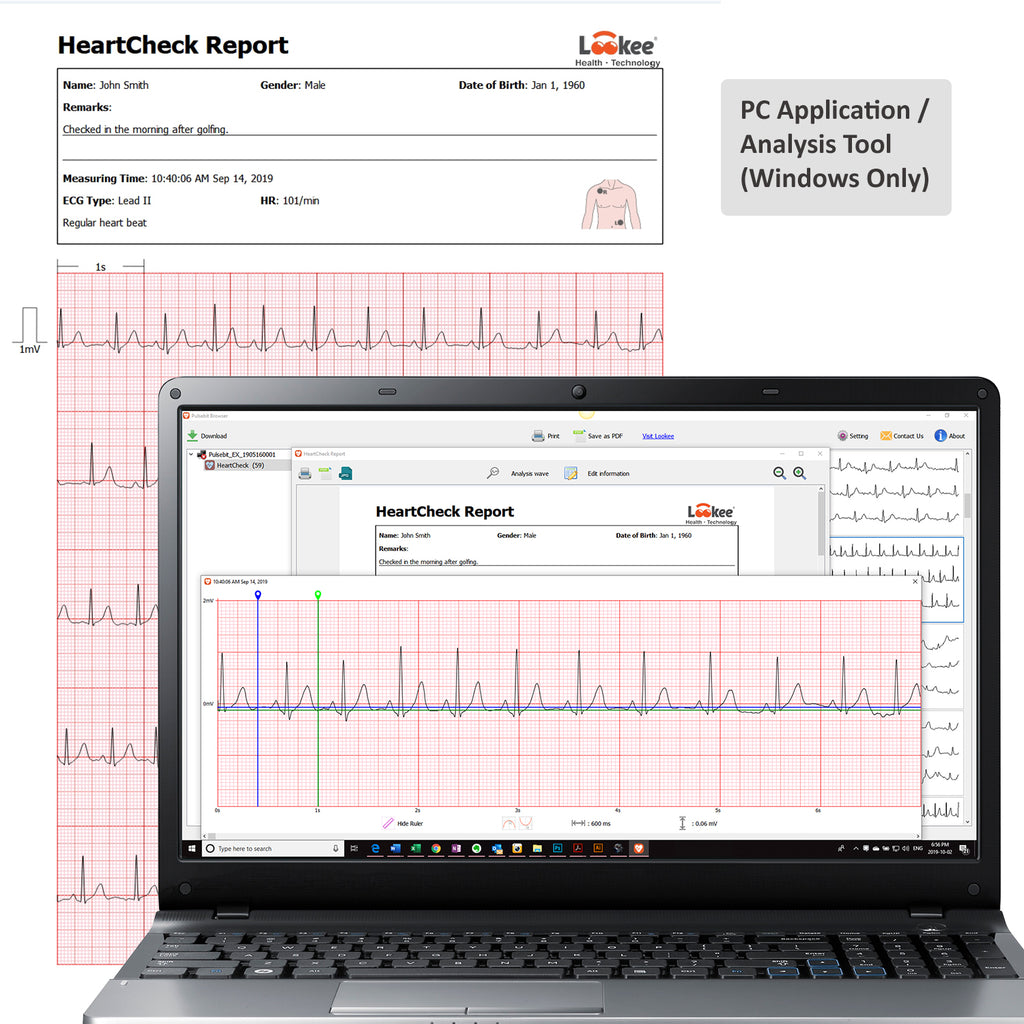 Lookee ECG EKG Heart Monitor PC App and Analysis Tool to share professional report and printout