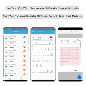 New! Lookee® ECG/EKG Heart Monitor | Personal Wireless Heart Rate Tracker | Color Touch Screen | Cable or Cable Free Recording in 30s/60s/5Min | Helps Detect Cardiac Abnormalities On The Go | Free Apps for Mobile & PC with Report | Wellness & Sport Use