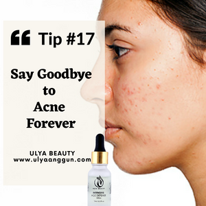 Tip #17: SAY GOODBYE TO ACNE FOREVER