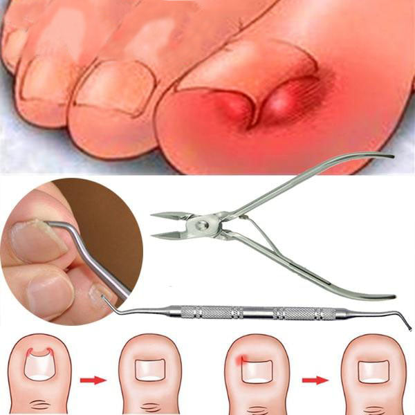Toenail Clippers for Elderly,Toe Nail Clippers Used for