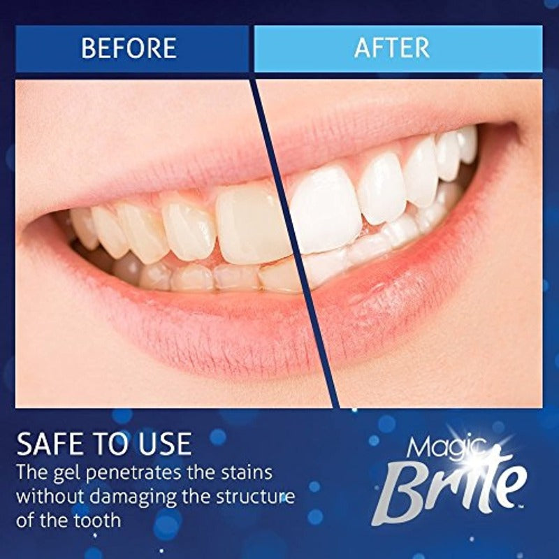 Magic Brite At Home Complete Teeth Whitening Kit