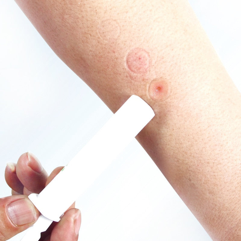 Mosquito Bites Extractor Vacuum Pump Reduce Itching & Swelling