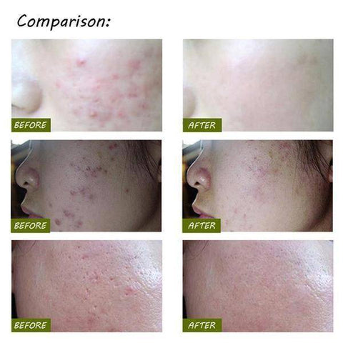 Image of Acne Pen Therapy