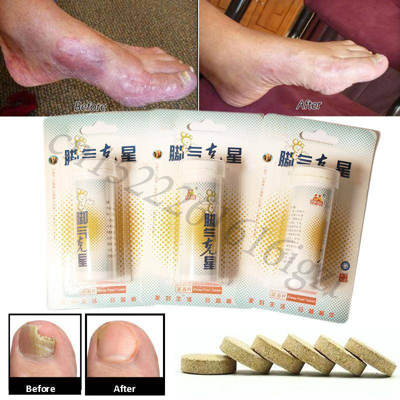 Antifungal Detox Foot Soak