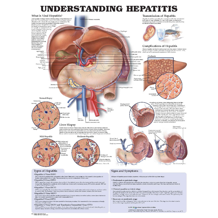 Understanding Hepatitis Anatomical Chart