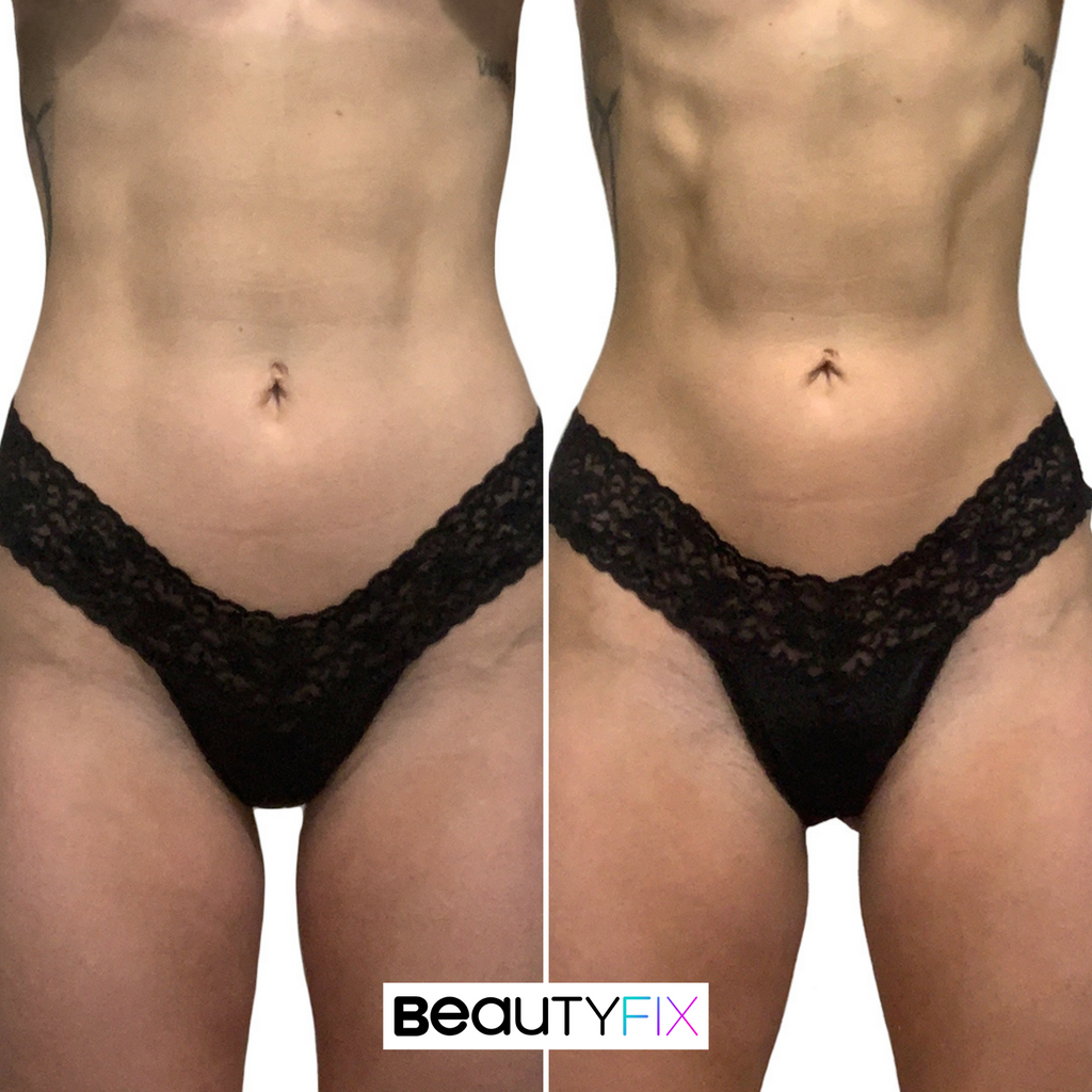 AbFix: truSculpt Flex – Beauty Fix MedSpa