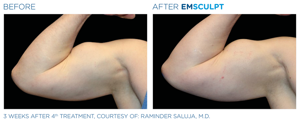 ArmFix: EmSculpt Neo – Beauty Fix MedSpa