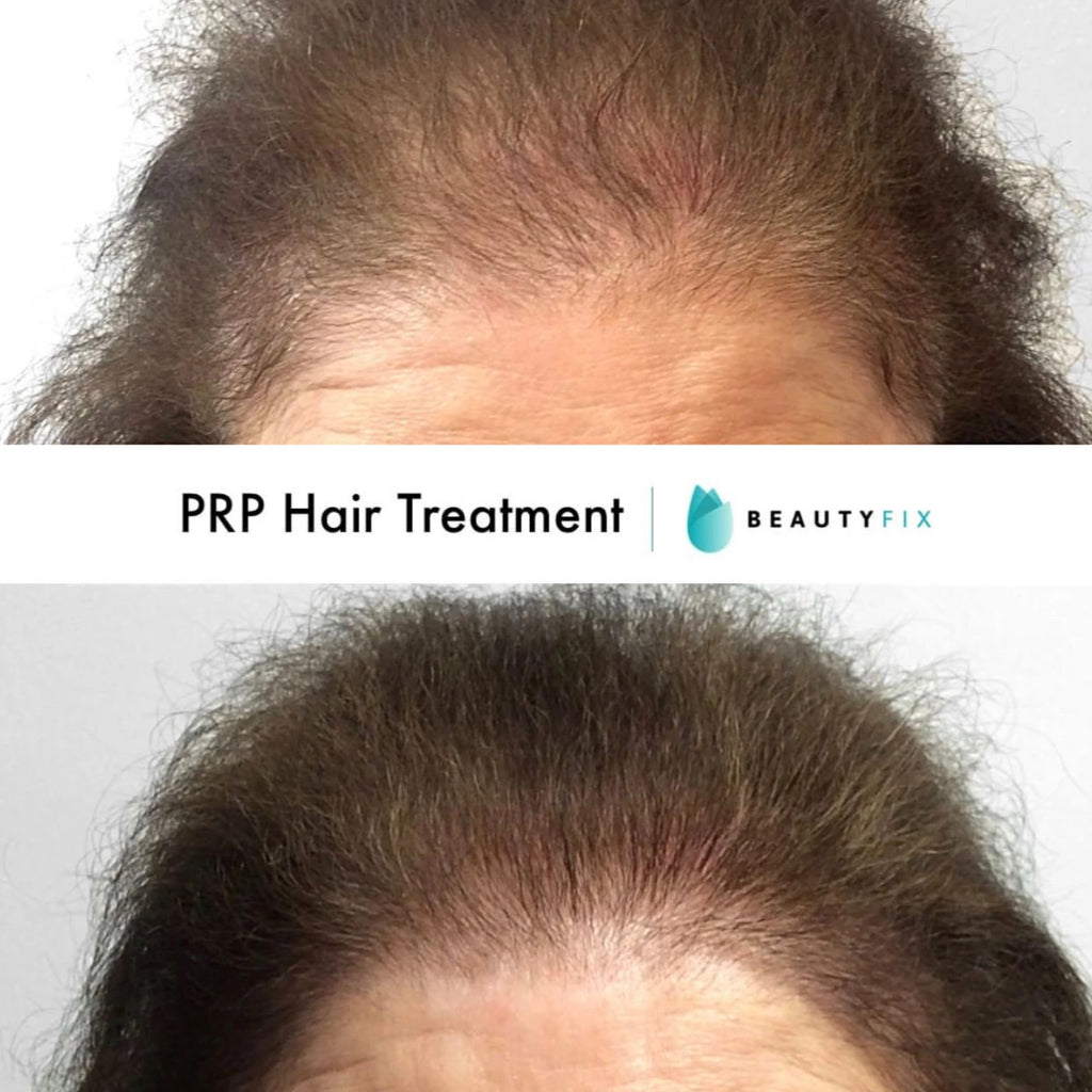 HAIR FIX: PRP Injections